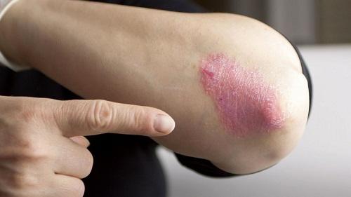 Bệnh vẩy nến và những biến chứng khó lường