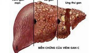 Bệnh viêm gan C có nguy cơ biến chứng thành ung thư không?