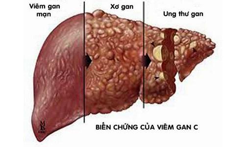 Bệnh viêm gan C có nguy cơ biến chứng ung thư