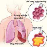 Những tác nhân gây bệnh viêm phổi khi vào viện