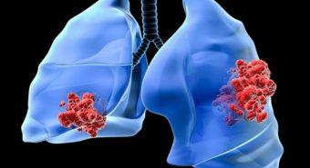 Cách đếm nhịp thở phát hiện bệnh viêm phổi