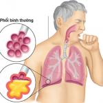Bị viêm phổi vào mùa đông, tại sao?