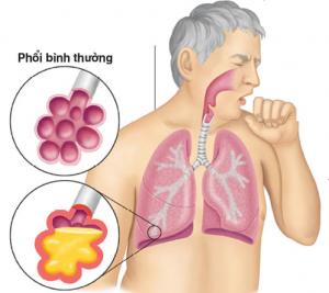 bị viêm phổi