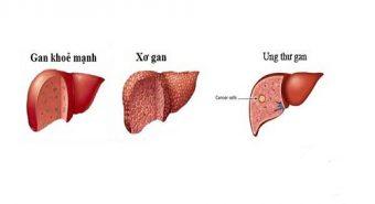 Ung thư gan - Biến chứng của bệnh xơ gan khi điều trị muộn