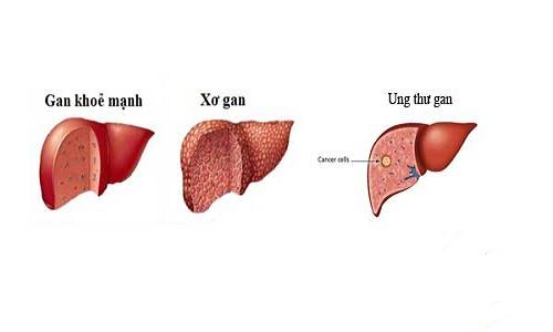 Biến chứng của bệnh xơ gan