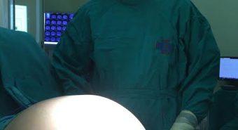 Bệnh viện K phẫu thuật thành công khối u buồng trứng nặng 16kg