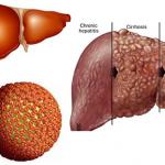 Những biến chứng viêm gan C có thể nguy hiểm đến tính mạng