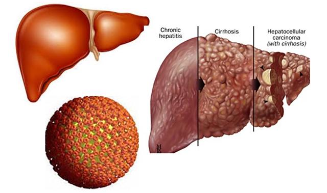 Biến chứng viêm gan C nguy hiểm