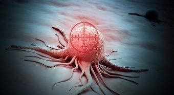 Phát hiện các loại protein là căn nguyên gây bệnh ung thư não