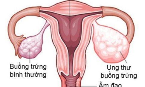 """""""Chân dài"""" dễ mắc bệnh ung thư buồng trứng"""