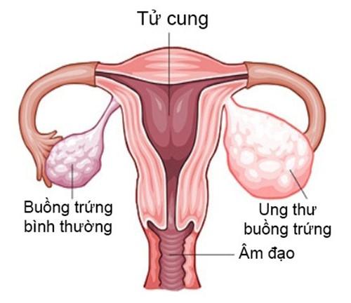 Bệnh ung thư buồng trứng