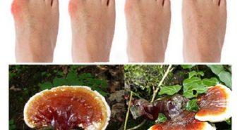 Trị bệnh gout nhờ công dụng của nấm lim xanh Tiên Phước