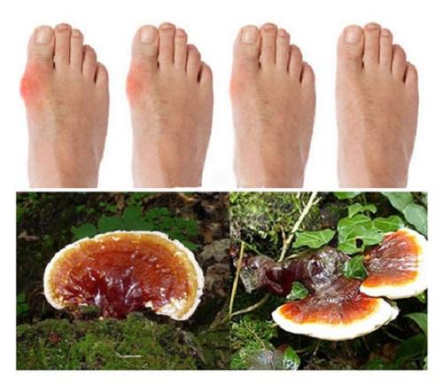 Trị bệnh gout dứt điểm nhờ công dụng của nấm lim xanh Tiên Phước