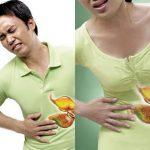 Nguyên nhân, triệu chứng và cách điều trị đau dạ dày cấp