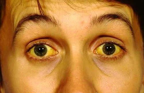 Vàng da, vàng mắt là một trong những dấu hiệu của bệnh viêm gan B