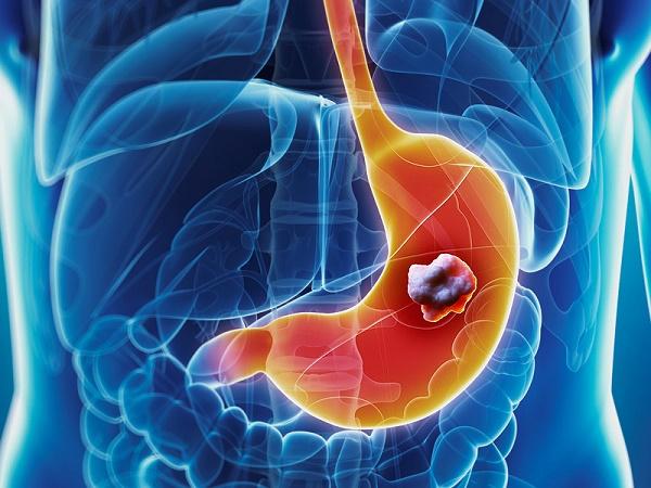 Điều trị ung thư dạ dày