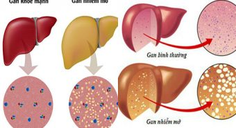 Gan nhiễm mỡ - dấu hiệu cảnh báo nhiều bệnh lí nguy hiểm