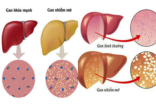 Gan nhiễm mỡ là dấu hiệu nhiều bệnh lí nguy hiểm