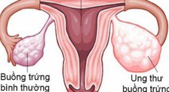 Giảm nguy cơ ung thư buồng trứng nhờ ăn ít chất béo