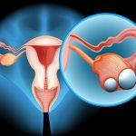 Hàng nghìn phụ nữ vô tình mang gen bệnh ung thư buồng trứng