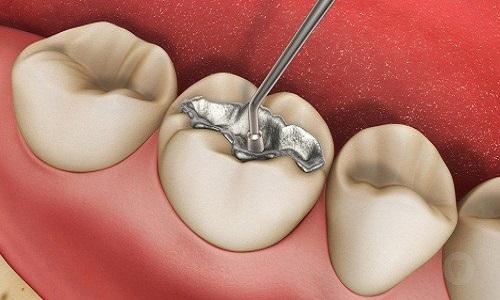 Thủy ngân có nhiều trong bạc kim loại hàn răng
