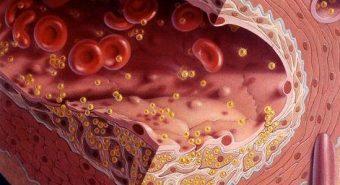 Chế độ ăn khoa học cho người máu nhiễm mỡ