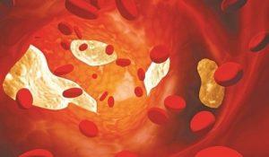 Khái niệm máu nhiễm mỡ và mức độ nhuy hiểm của bệnh mỡ máu cao