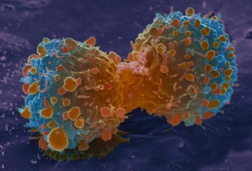 Dấu hiệu ung thư phổi