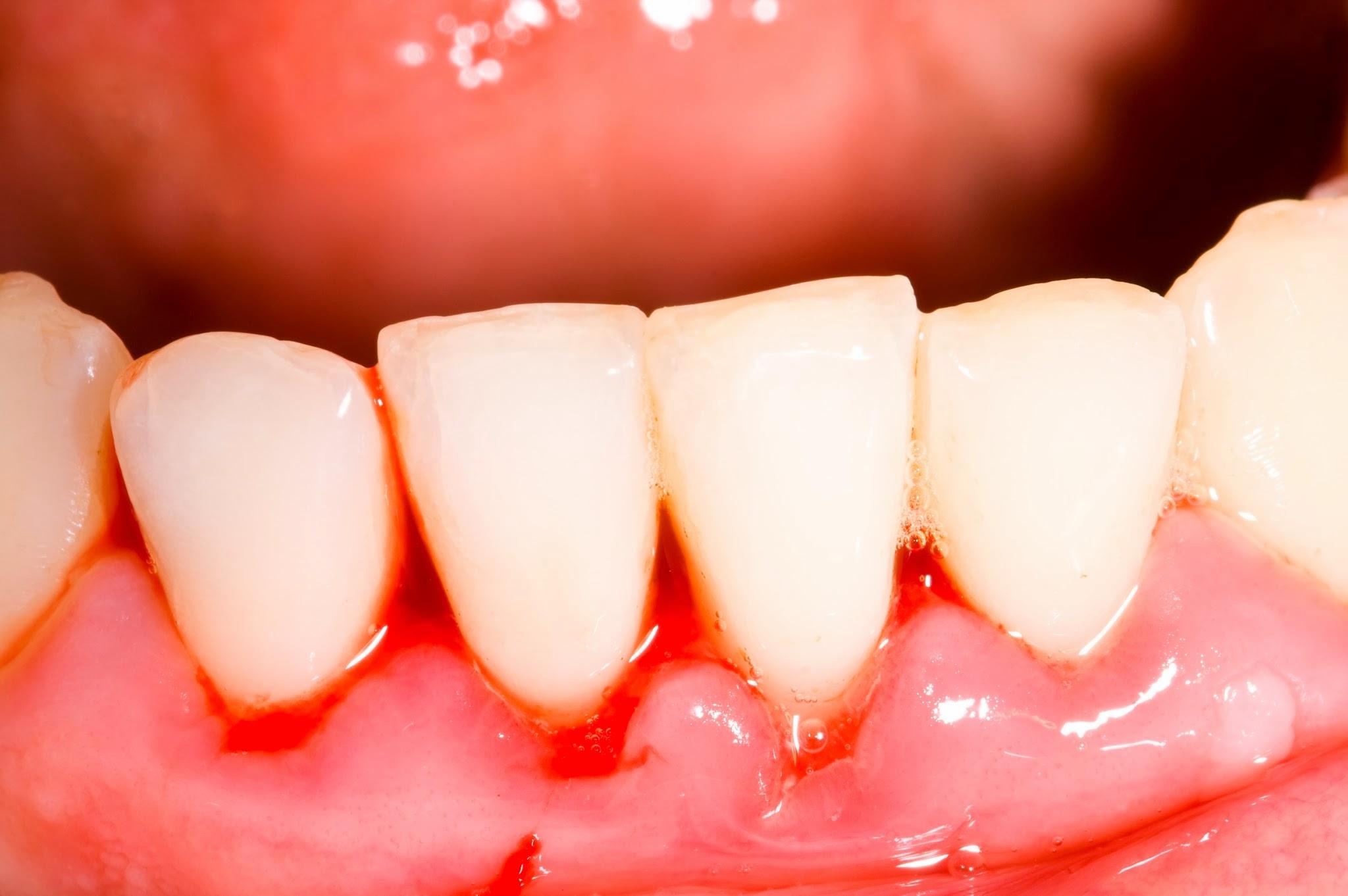 Người mắc bệnh ung thư máu thường xuyên bị chảy máu nướu răng