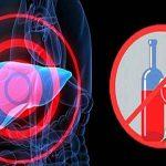 Nói không với rượu khi mắc bệnh viêm gan C