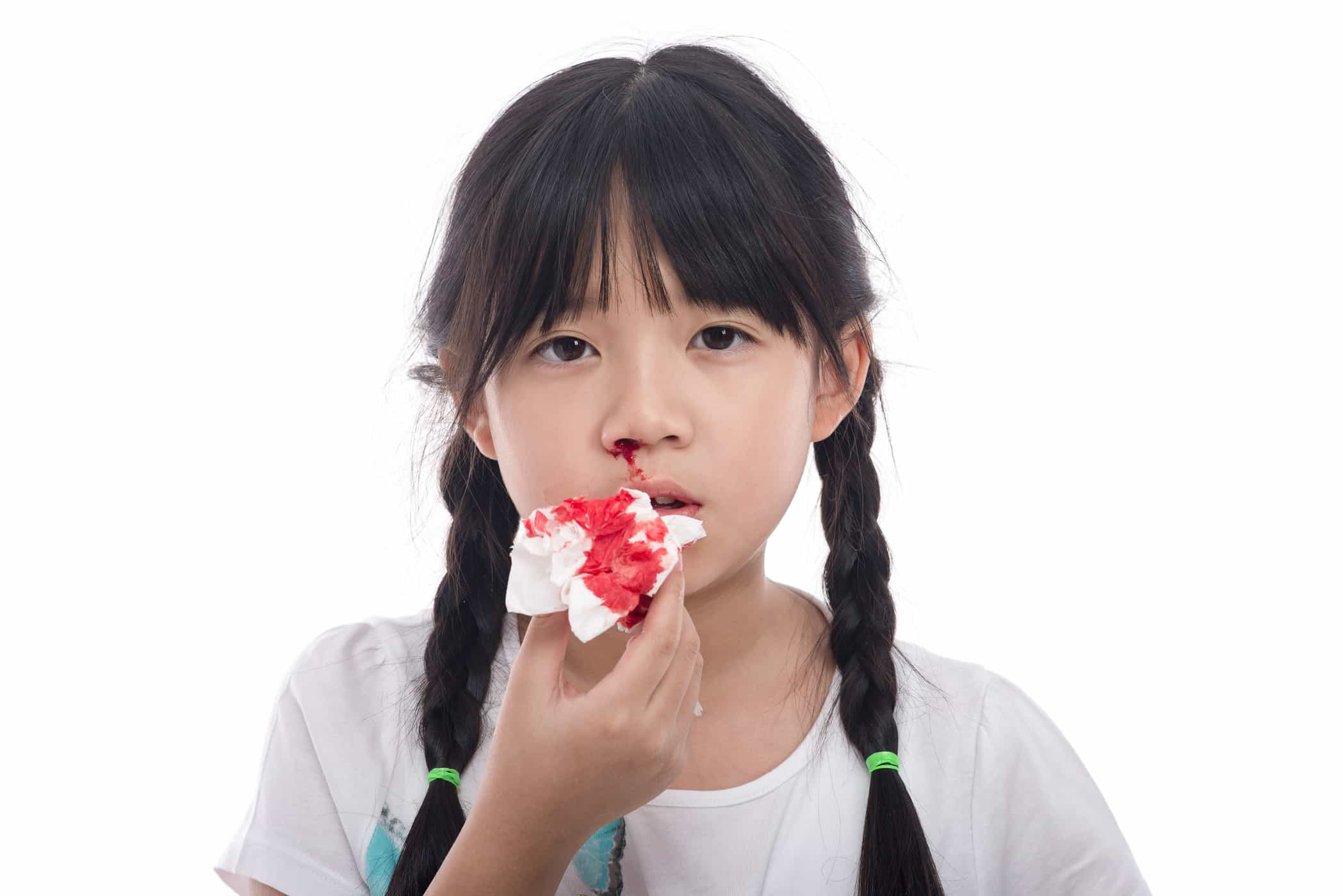 Chảy máu mũi có thể là dấu hiệu của ung thư máu