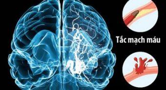 Tai biến mạch máu não có nên châm cứu?