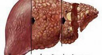 Siêu vi viêm gan C là nguyên nhân gây ung thư gan, xơ gan