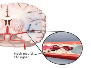 bệnh tai biến mạch máu não