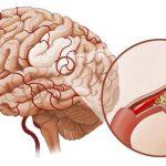 Cách dự phòng tai biến mạch máu não