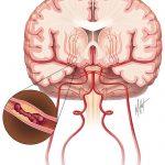 Phương pháp cấp cứu người bệnh thiếu máu não
