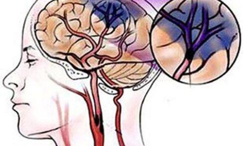 Cải thiện chứng bệnh thiếu máu não