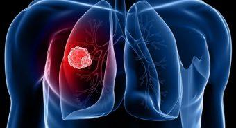 Thử nghiệm điều trị ung thư phổi bằng liệu pháp tế bào gốc