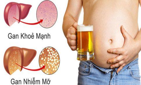 Tìm hiểu triệu chứng và cách điều trị gan nhiễm mỡ