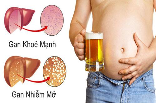 Không uống rượu bia là một biện pháp điều trị gan nhiễm mỡ hiệu quả