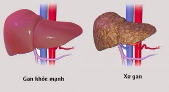 Tổng hợp những kiến thức về bệnh xơ gan bạn nên biết