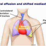 Cứu sống bệnh nhi bị tràn dịch màng phổi