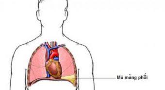 Vì sao bị bệnh tràn dịch màng phổi?