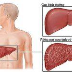 Nguyên nhân và những triệu chứng bệnh xơ gan thường gặp