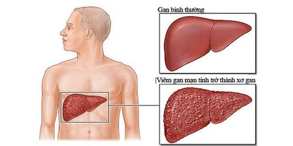 Triệu chứng bệnh xơ gan