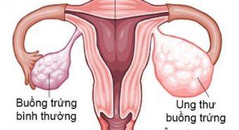 Ung thư buồng trứng có nguy cơ di truyền cao nhất trong các loại ung thư