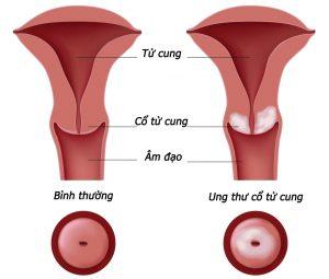 ung thư cổ tử cung rất nguy hiểm