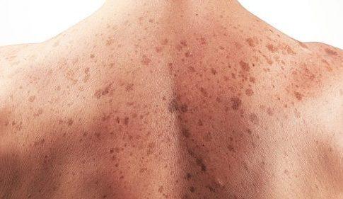 Những thông tin liên quan tới ung thư da và bệnh hắc tố mà bạn chưa biết