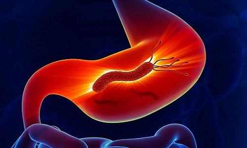 Vi khuẩn Hp là nguyên nhân chính gây ung thư dạ dày