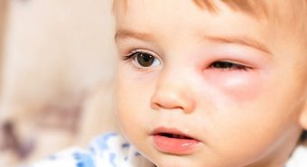 Cẩn thận tránh lầm tưởng viêm mắt với ung thư mắt ở trẻ